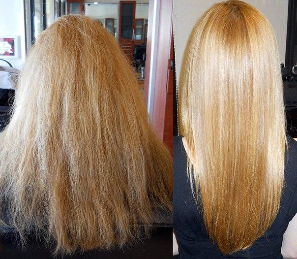 Как влияет ботокс на волосы